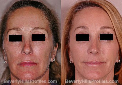 pics female patient before and after Browlift Procedures