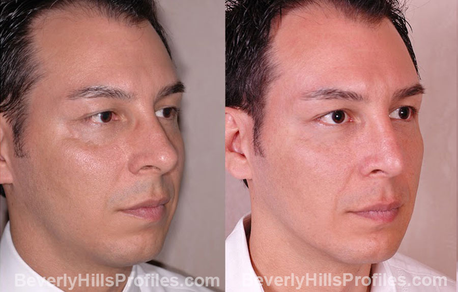 oblique view male patient before and after Chin Implants