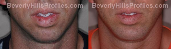 front view - Male patient before and after Chin Implants