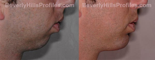side view - Male before and after Chin Implants
