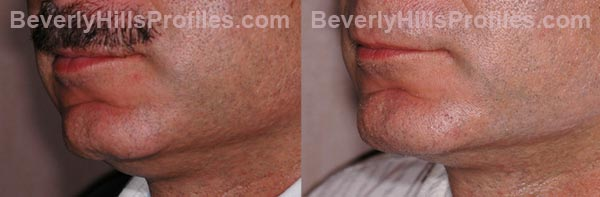 Male before and after Chin Implants - oblique view