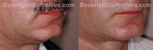 Male before and after Chin Implants - side view