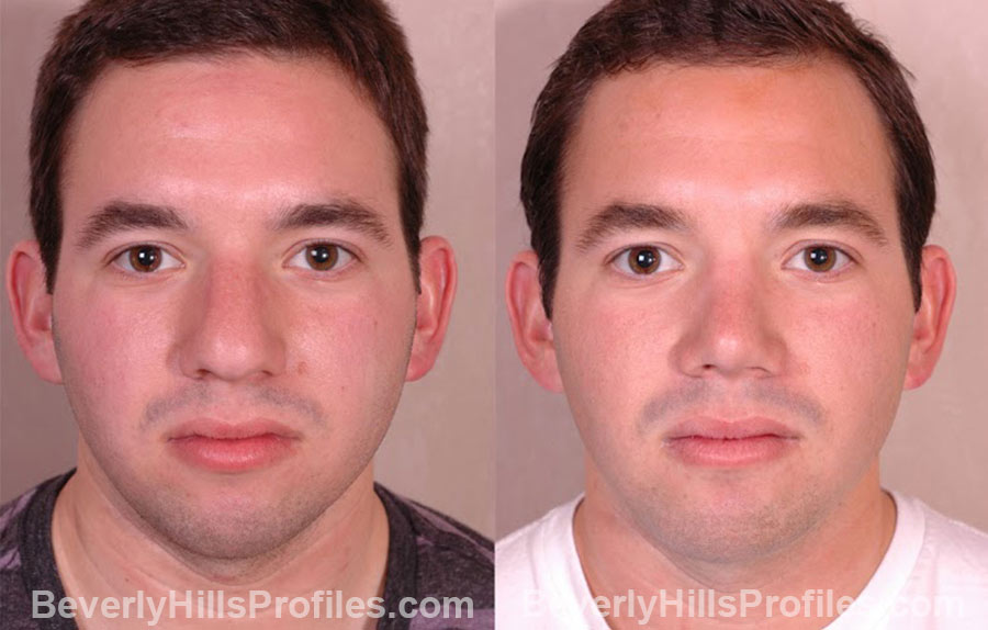 front view Male patient before and after Chin Implants