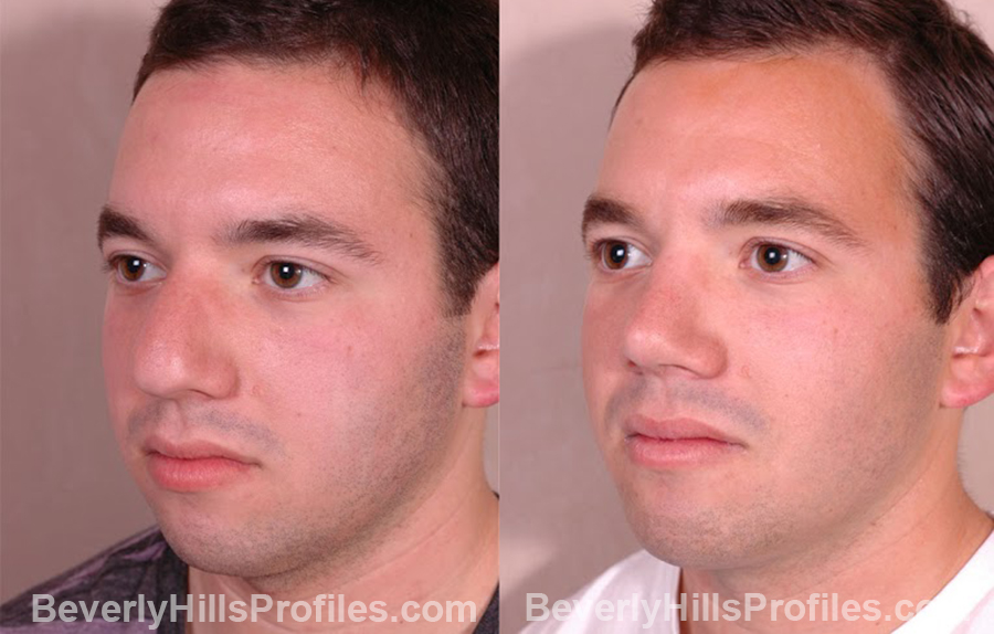 oblique view Male before and after Chin Implants