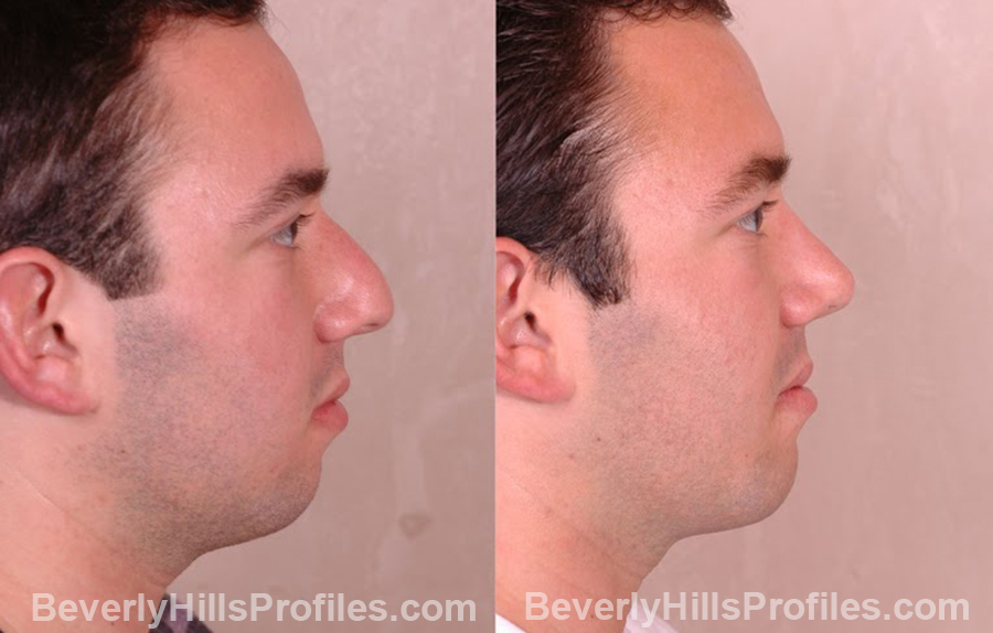 side view Male before and after Chin Implants