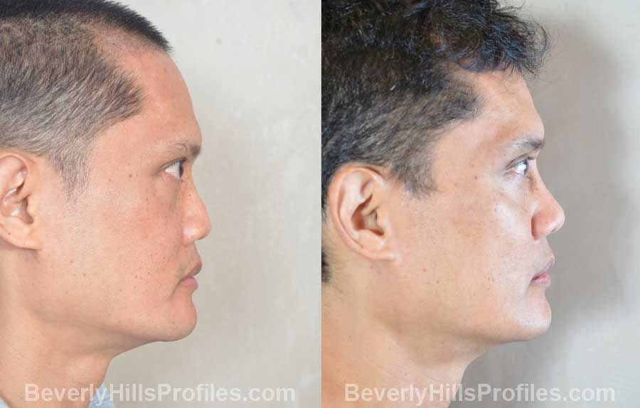 front photos - Male before and after Ethnic Rhinoplasty