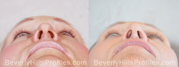 Female before and after Eyelid