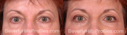 photos Female before and after Eyelid