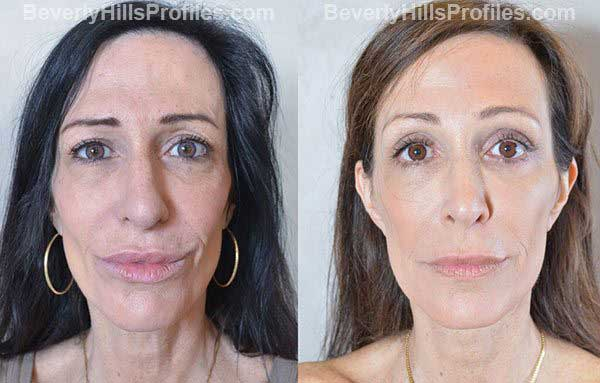 photos Female before and after Facelift - front view