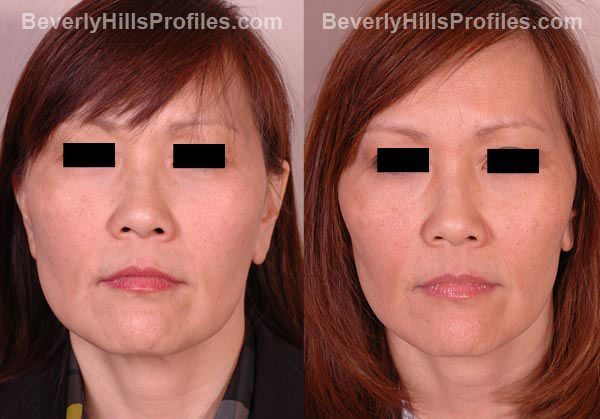 front view patient before and after Facelift