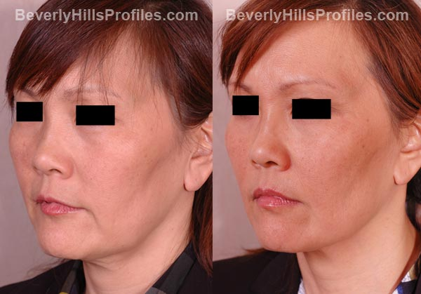 oblique view patient before and after Facelift