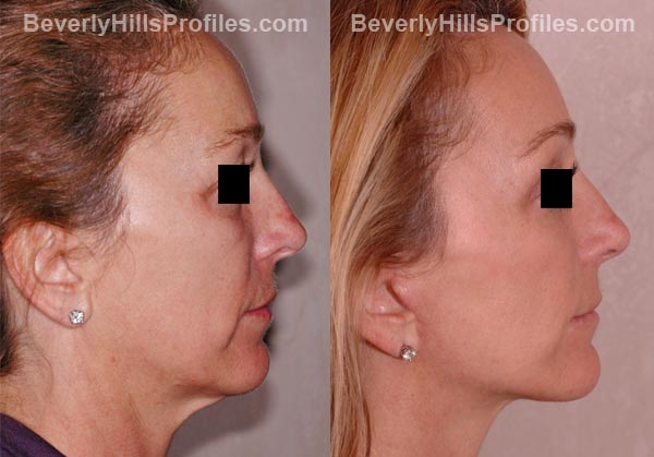side view - Female before and after Facelift