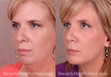 Female before and after Facial Fat Transfer - oblique view