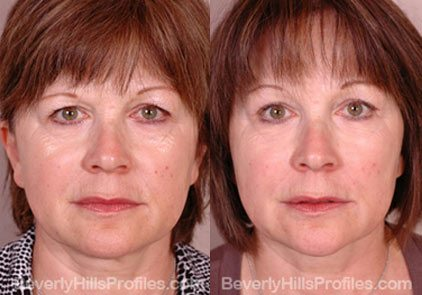 front view Female patient before and after Facial Peels