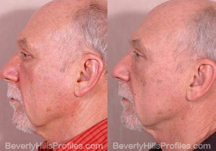 Male before and after Eyelid - side photos