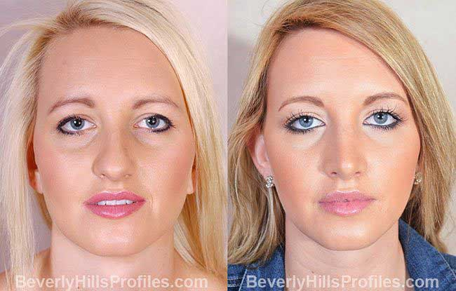 Female patient before and after Rhinoplasty - front view