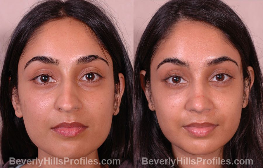 front photos Female patient before and after Rhinoplasty