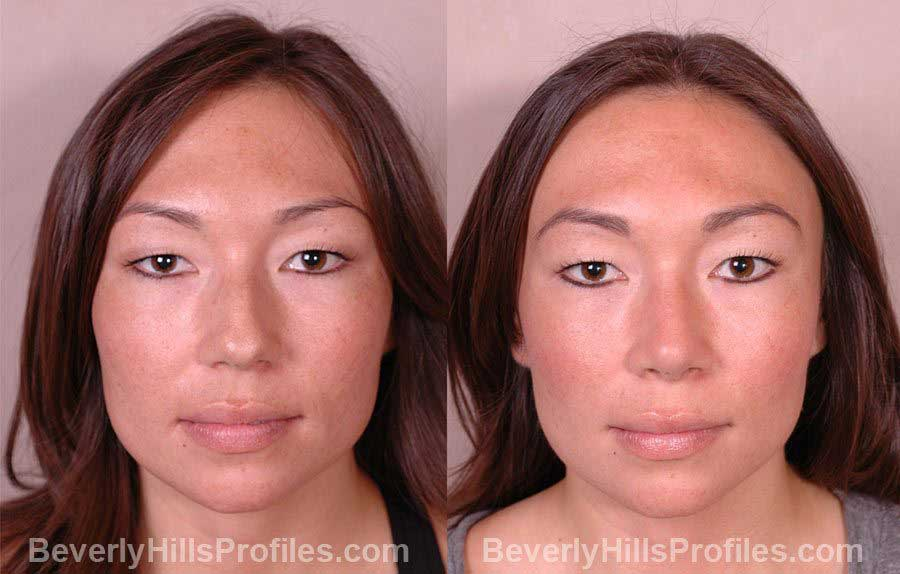 front photos Female before and after Nose Job