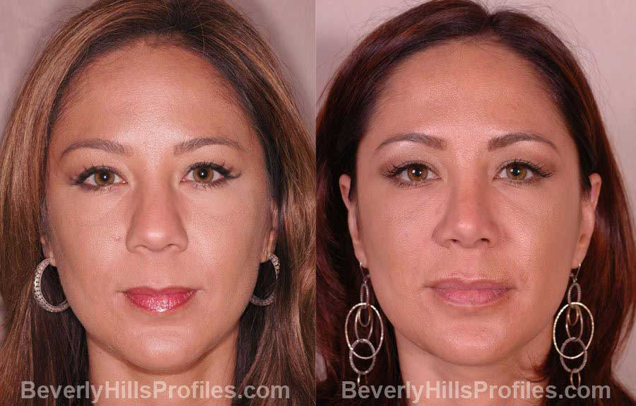 front photos, Female before and after Nose Job
