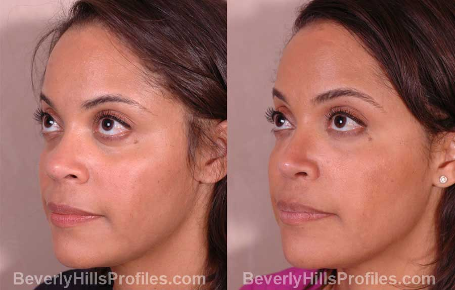 front view, Female patient before and after Nose Job