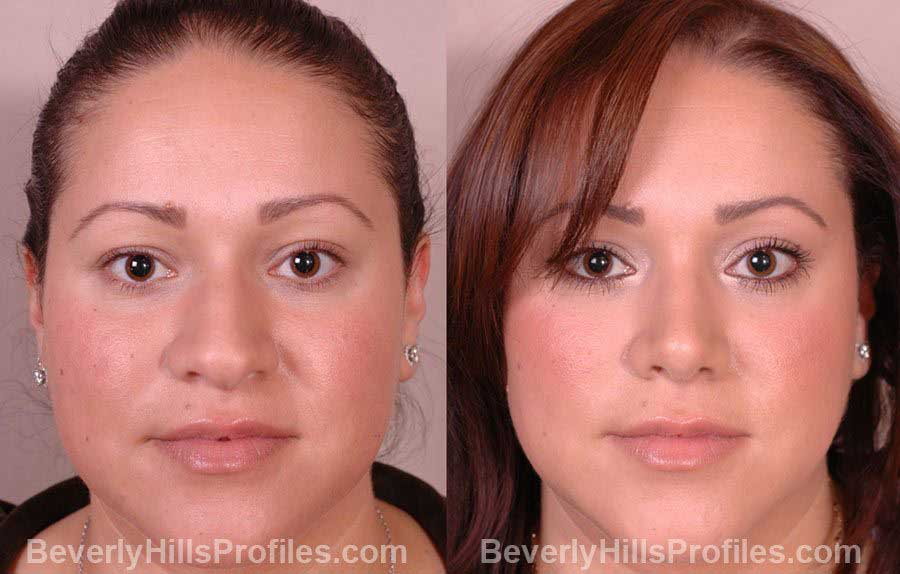 Female patient before and after Nose Job front view