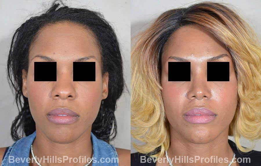 Female before and after Rhinoplasty, front view