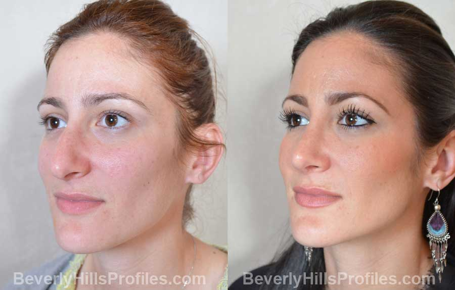 imgs Female before and after Nose Job front view