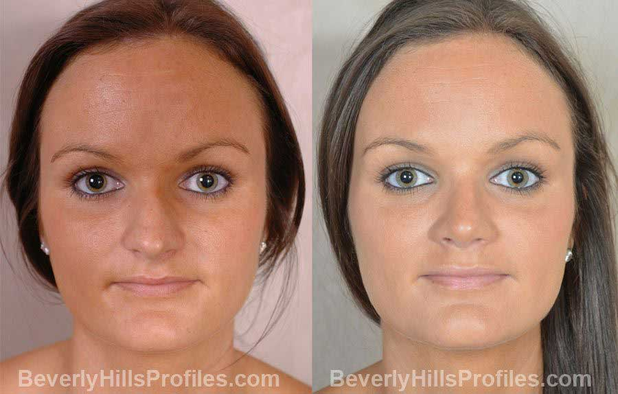 Female patient before and after Nose Job, front view