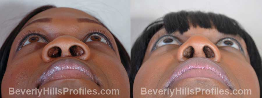 Female before and after Nose Surgery front view