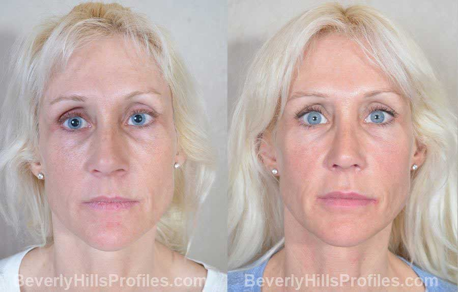 Female before and after Nose Surgery - front view