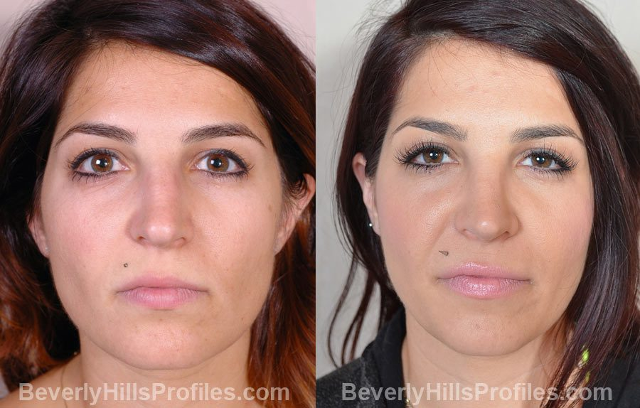 photos Female before and after Nose Surgery - front view