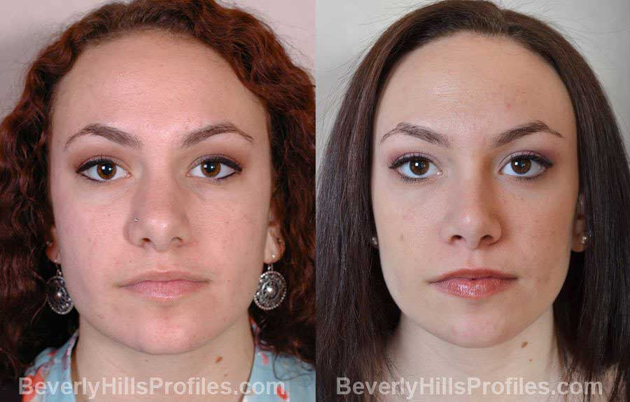 pics Female before and after Nose Surgery - front view