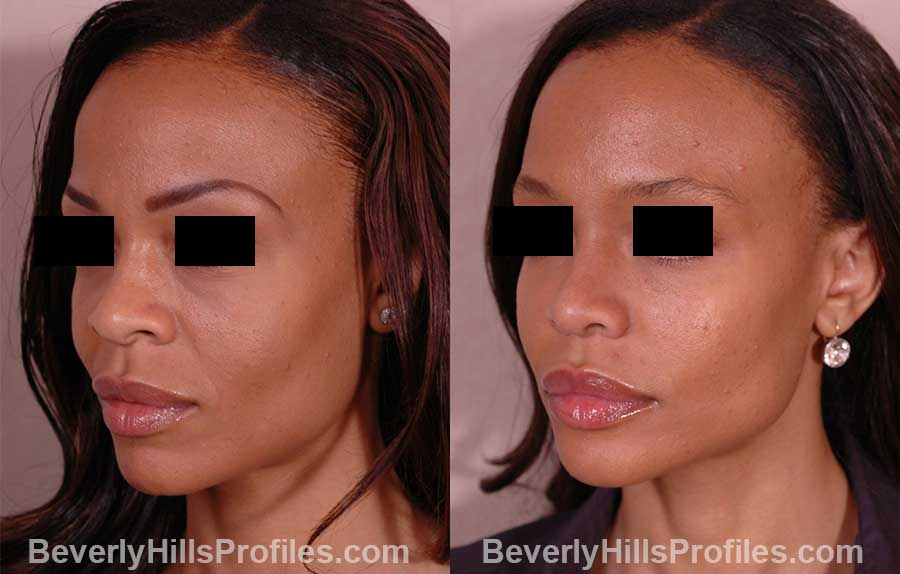 front view - Female before and after Rhinoplasty