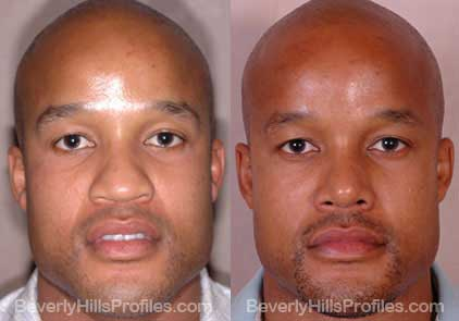 front view Male before and after Rhinoplasty