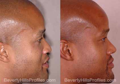 side view Male before and after Rhinoplasty