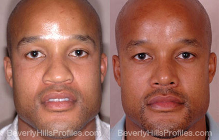 Male patient before and after Rhinoplasty - Images