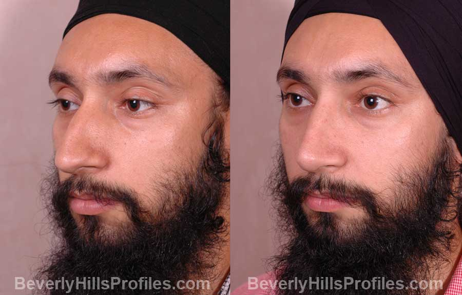 front view - Male before and after Rhinoplasty