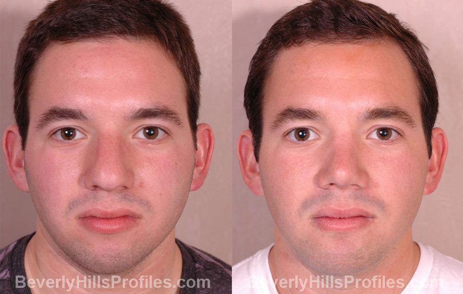 front view - Male patient before and after Rhinoplasty