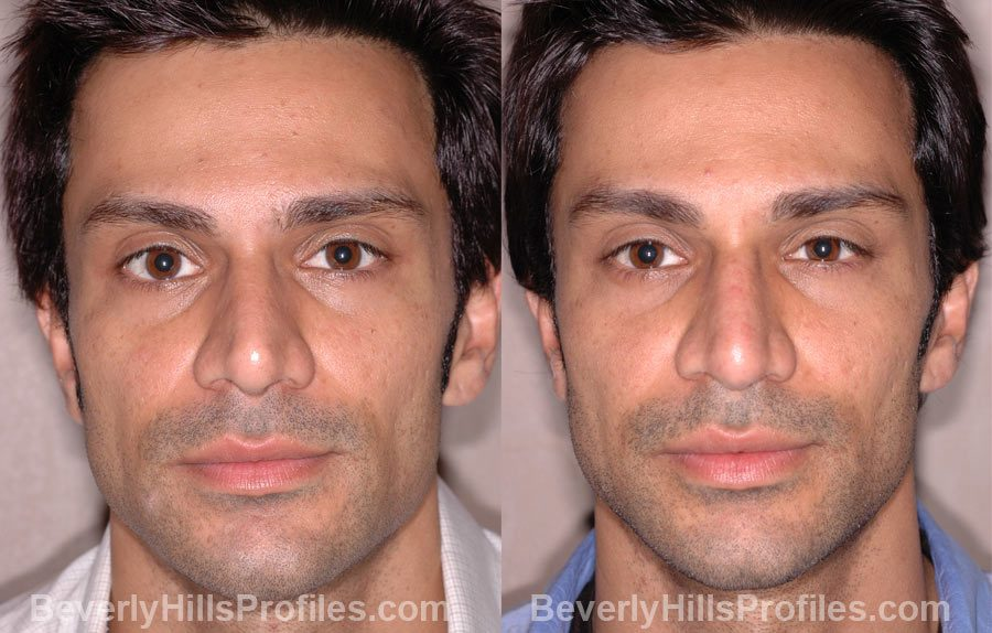Male before and after Nose Job - front view