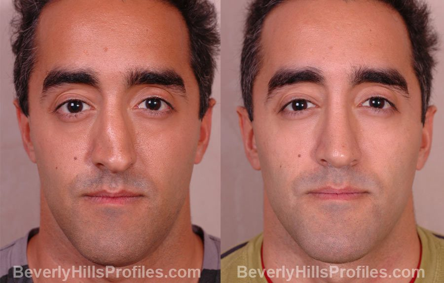 Male patient before and after Nose Job front photos