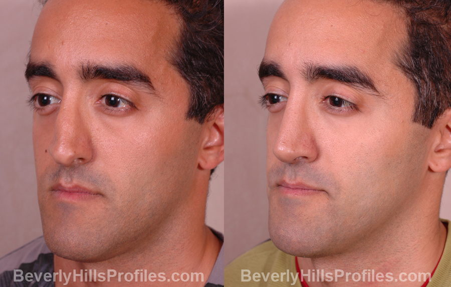 Male patient before and after Nose Job oblique photos