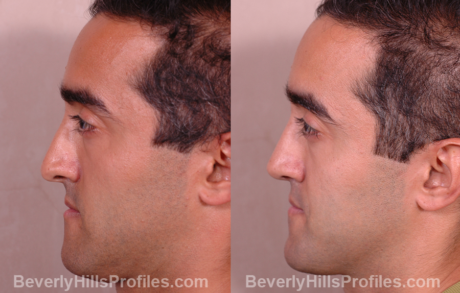 Male patient before and after Nose Job side photos
