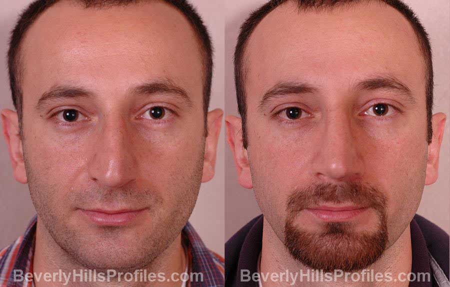 pics Male before and after Nose Job - front view