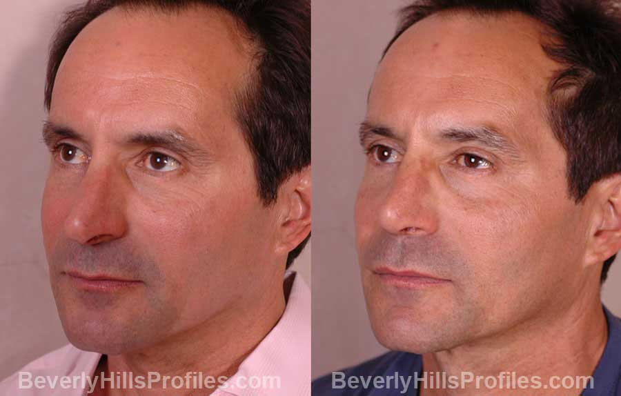 imgs Male before and after Nose Job - front view