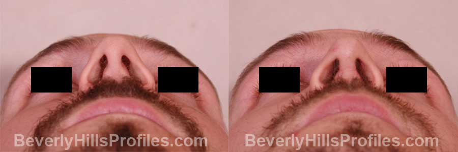pics Male before and after Nose Job front view