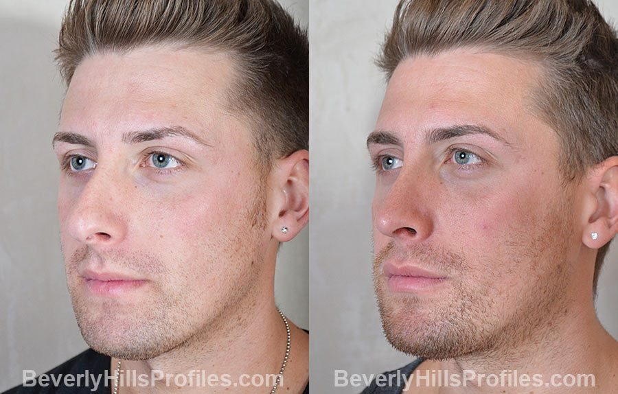 Male patient before and after Rhinoplasty - oblique view