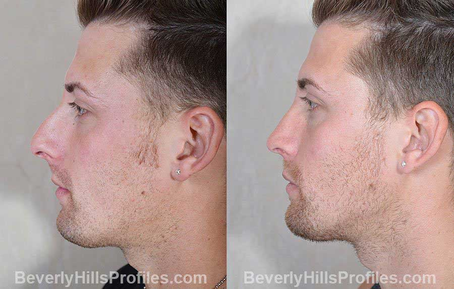 Male patient before and after Rhinoplasty - side view