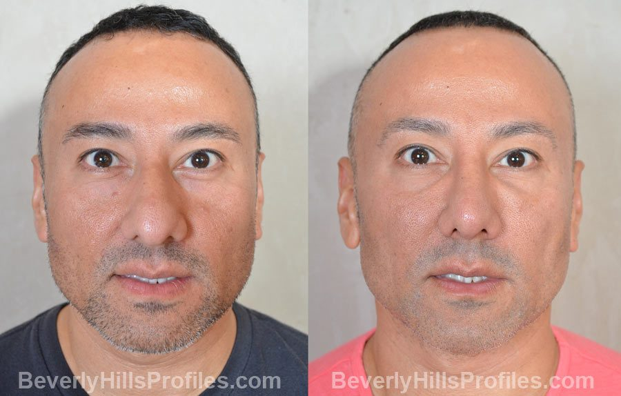 Male before and after Nose Surgery front view