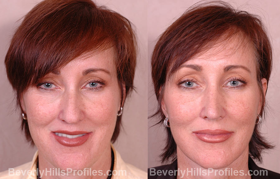 photos before and after Necklift - front view