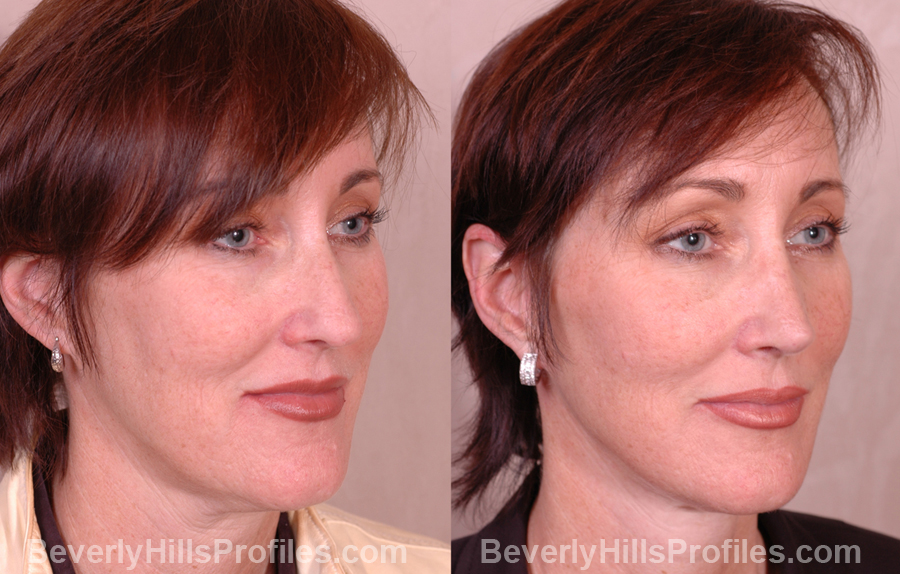 photos before and after Necklift - oblique view